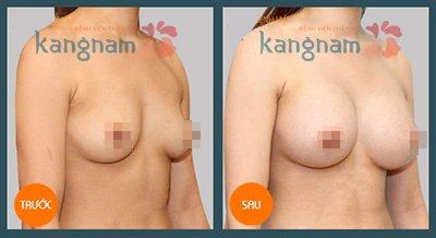 Kết quả trước và sau khi thẩm mỹ ngực tại BVTM Kangnam3