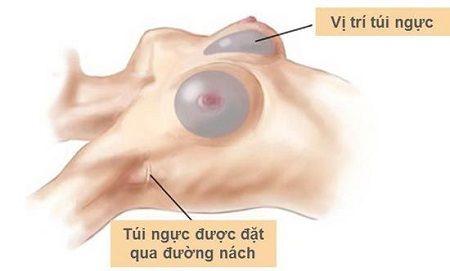 Phẫu thuật nâng ngực đường nào tốt nhất 2