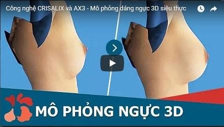 Nâng ngực Nano Fat 3