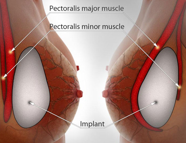 nâng ngực nội soi như thế nào