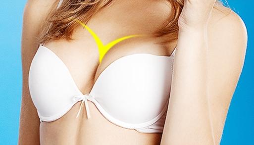 Khuôn ngực căng tròn tự nhiên là là mơ ước của mọi