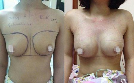 Phẫu thuật nâng ngực Y line có để lại sẹo không2