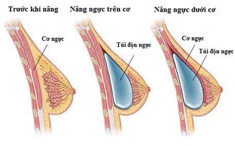 Tìm hiểu những điều cần biết về túi nâng ngực trước khi phẫu thuật8