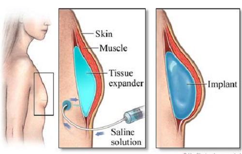 Nâng ngực nội soi không hề gây ảnh hưởng tới các vùng lân cận, bóc tách nhẹ nhàng1
