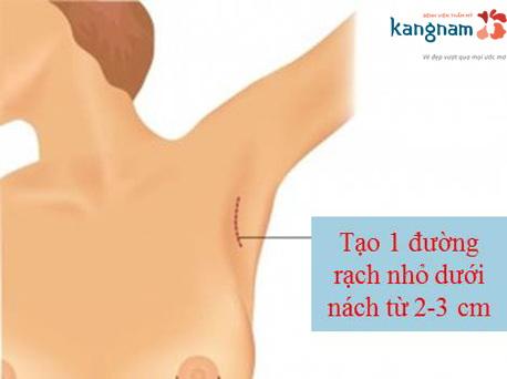 nâng ngực nội soi có tốt không?3