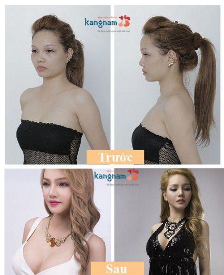 Quy trình nâng ngực an toàn tại Kangnam 7