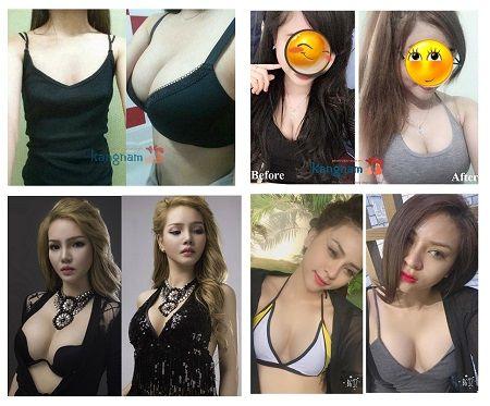 biến chứng nâng ngực6