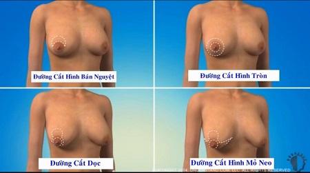 treo ngực sa trễ 2